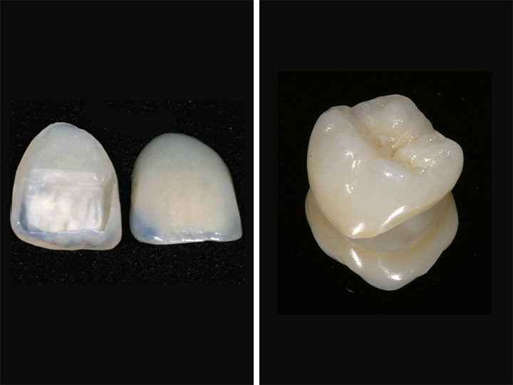 Dental Crowns, Bridges and Veneers
