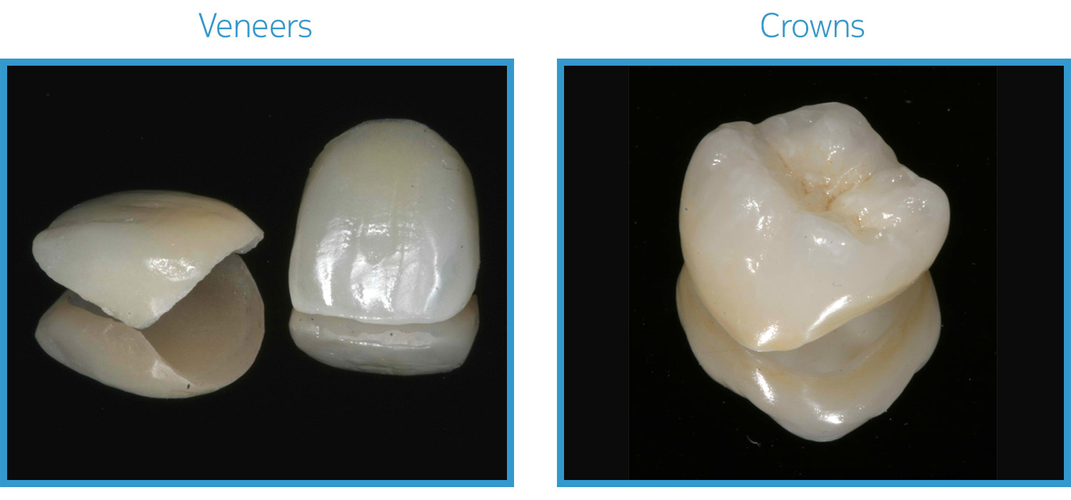 Crowns or veneers 14