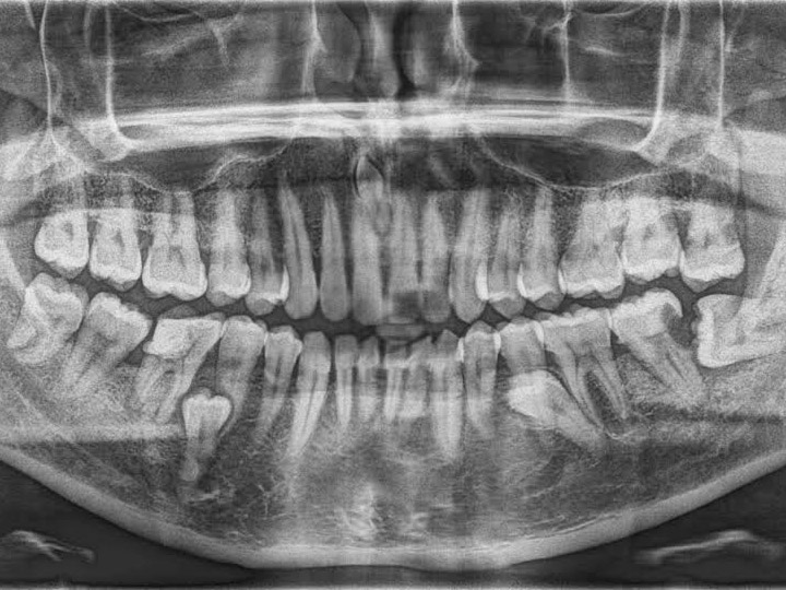 Dental X-ray Services and Diagnostics