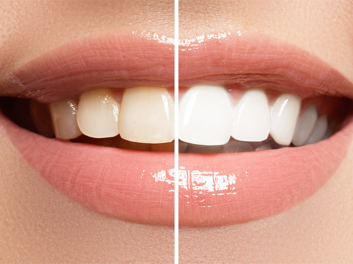 Cosmetic Dentistry | Dental World Manila