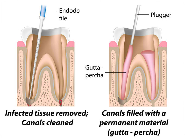 Endodontics (Root Canal Therapy)