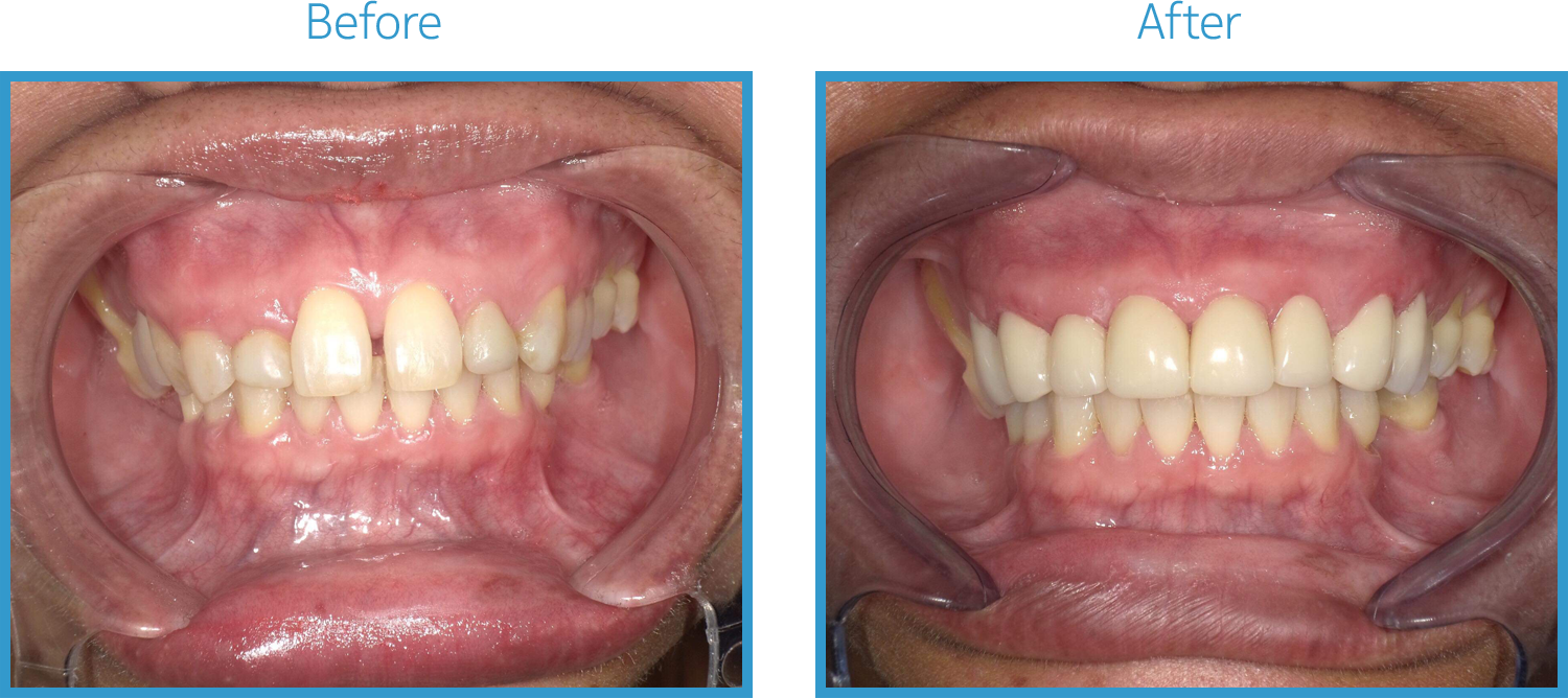 Cosmetic Gum Surgery and Composite Veneers