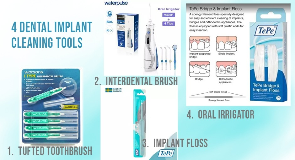 dental implant cleaning